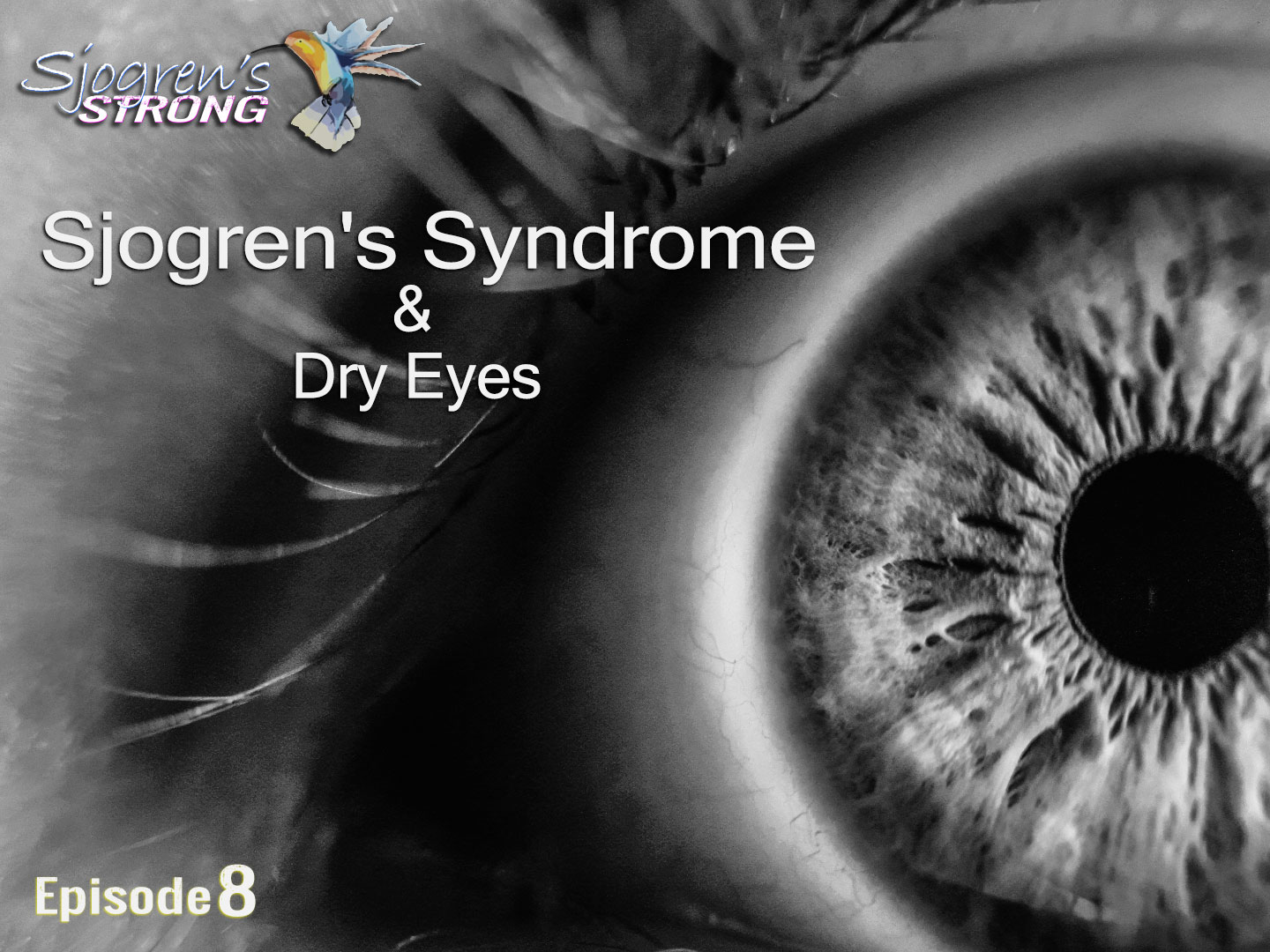 Sjogren's Syndrome and Dry Eyes